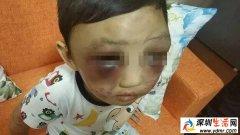 4岁男童遭母亲毒打!头肿脸青、遍体鳞伤