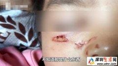 4岁女孩在父亲怀中熟睡 被天降烟头给烫伤 赔偿1万元